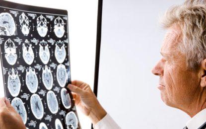 La esclerosis múltiple: una enfermedad difícil con la que se puede vivir