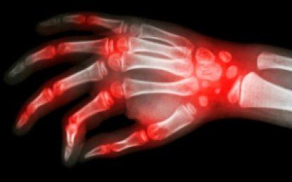 Todo lo que debe saber sobre la Artritis Reumatoide
