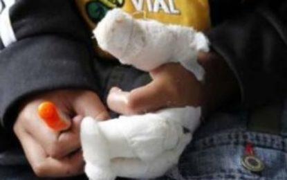 Dos adultos quemados con pólvora durante la Navidad en Cesar