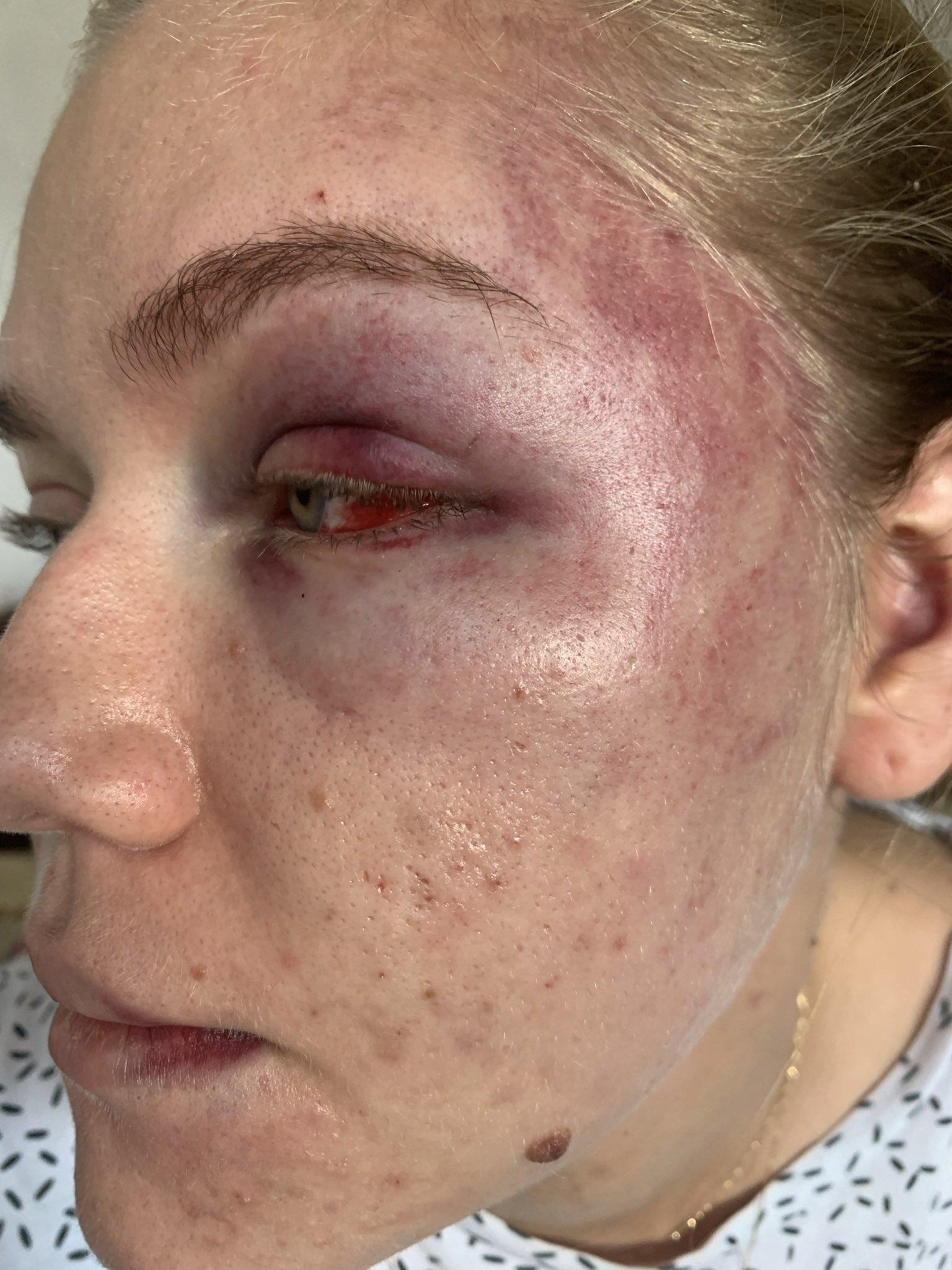 Concejal golpeó a su pareja sentimental - Noticias de Colombia